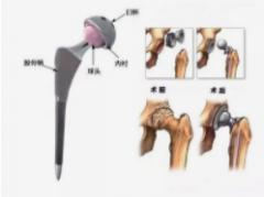 医疗器械髋关节假体产品